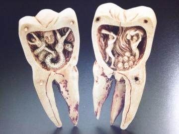 歯の治療中、歯医者に通っている間はなるべく飲酒 …